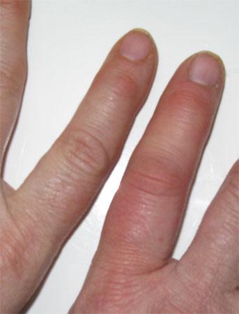 finger stung